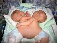 siamské dvojčatá